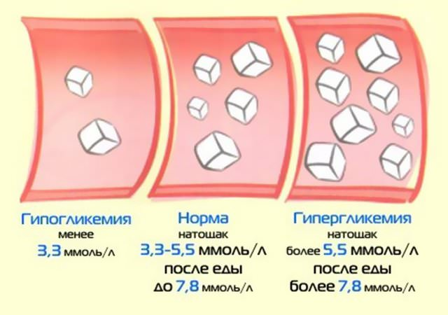 Сахар в норме