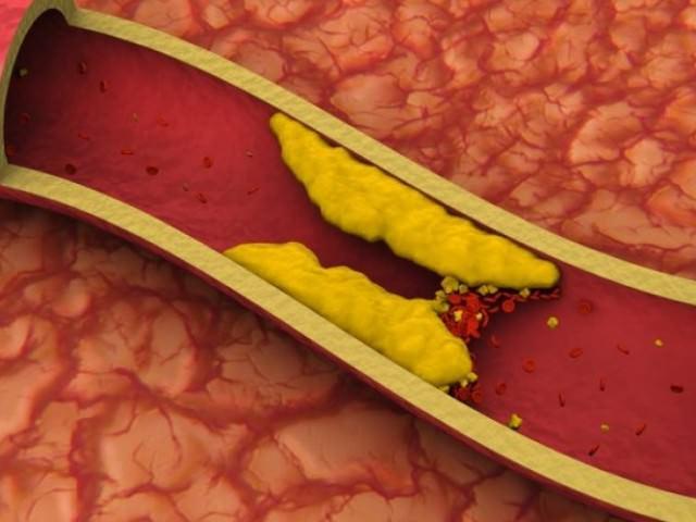 Таблетки от холестерин