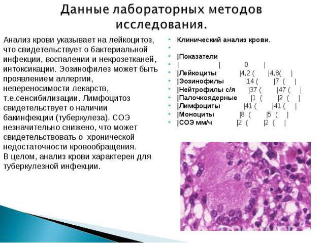 показывает ли общий анализ крови наличие аллергии