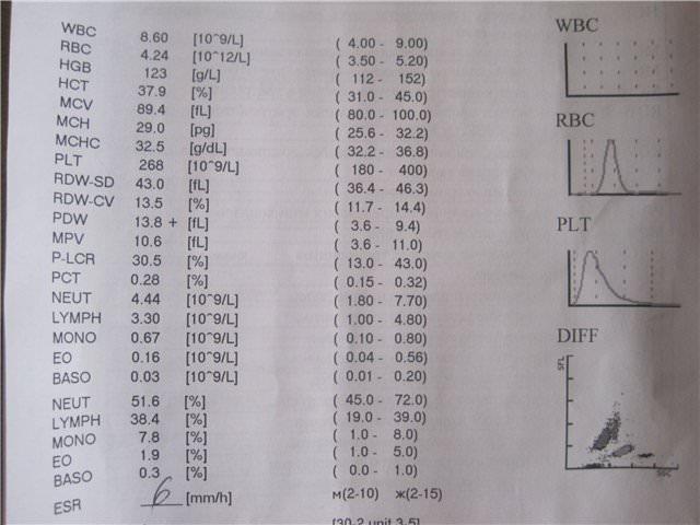 Показатели RDW в анализе крови иследование расшифровка диагноз