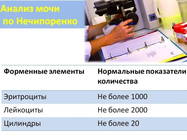 Анализ мочи норма у женщин в таблице: расшифровка