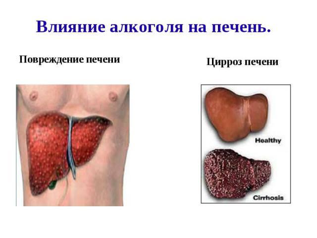 анализ крови высокий холестерин
