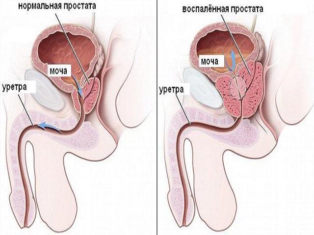 Препараты для лечения диффузных изменений печени и поджелудочной железы