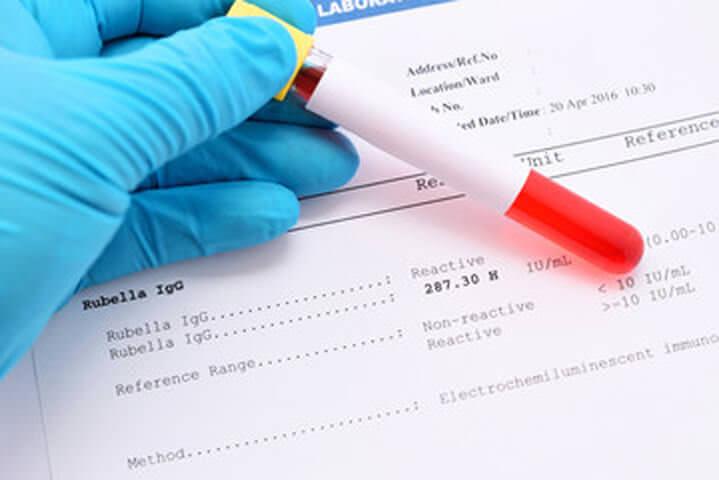 Иммуноферментный тест на заболевание