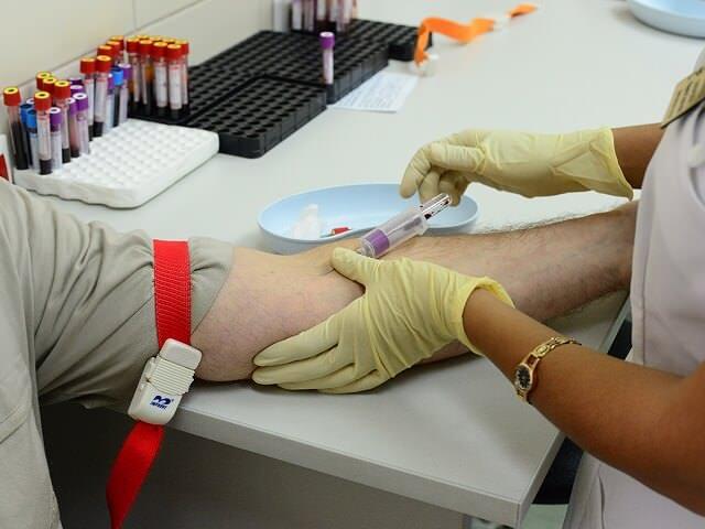Забор крови на анализ АЦЦП производится из локтевой вены