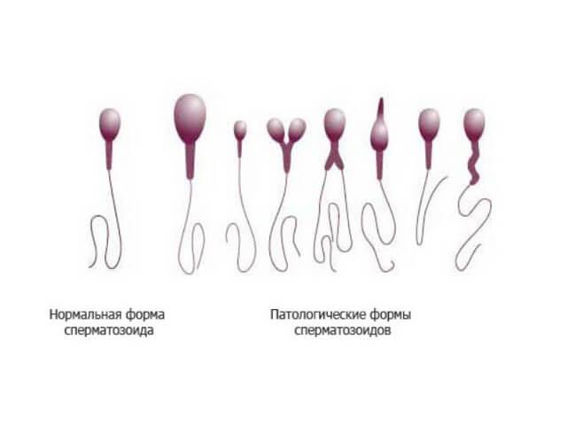 sluchaynaya-obnazhenka