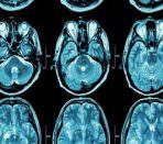 мрт мозга с контрастом