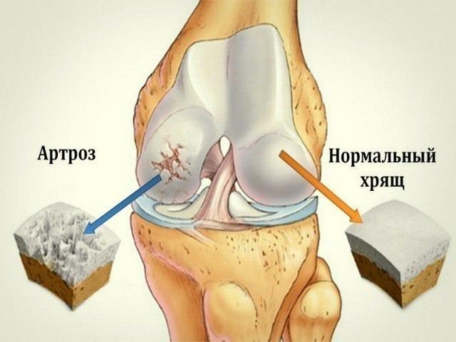 артроз колена псориатический