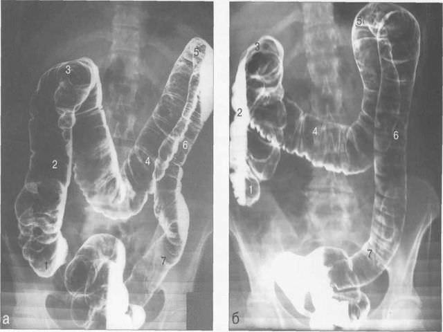 рентген кишечника