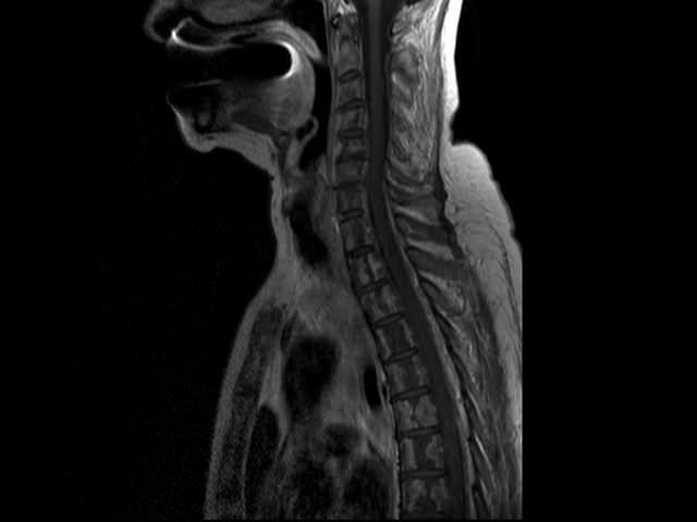 томография грудного отдела