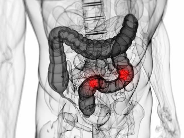 Патология кишечника