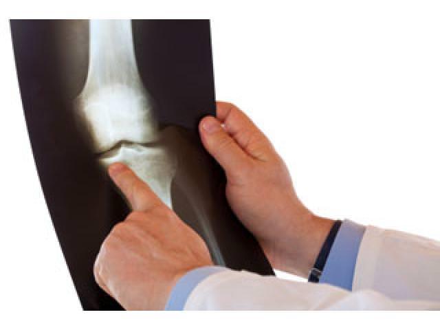Рентгенографический снимок