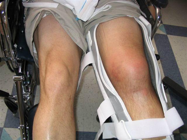 Поврежденное колено