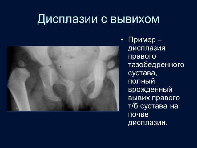 роды после дисплазии тазобедренных суставов