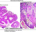 Антиген плоскоклеточной карциномы: онкомаркер SCC
