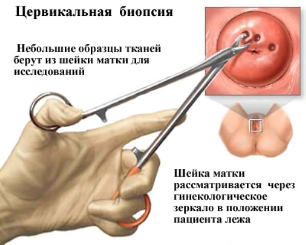 Кому показана операция?