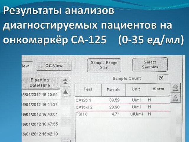 Анализ крови на са-125 расшифровка Больничный лист ВДНХ