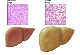 О чем говорит показатель крови аст