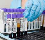 Пробирки с кровью для иммуноферментного анализа на паразитов