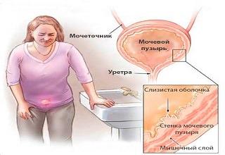 Анализы при заболевании циститом у женщин