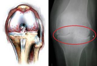 Что показывает рентген коленного сустава